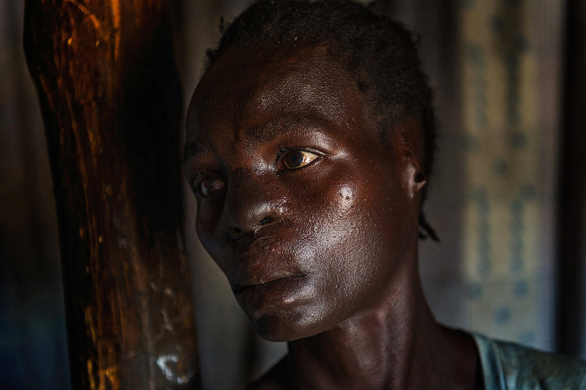 Life after Kony : Margaret heavily injured waits for compensation.