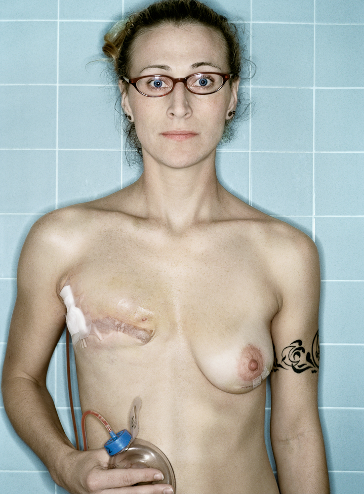 Self-Portrait, Post-Mastectomy : Aftermath series