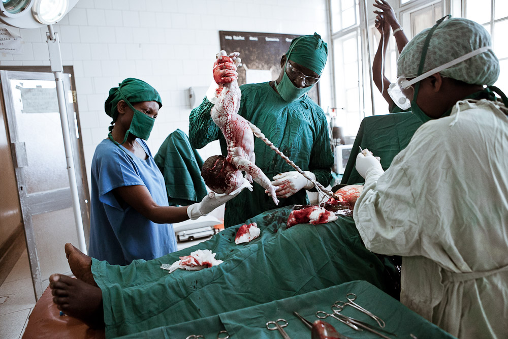 Birth is a dream - Maternity in Africa : Woman delivering in theatre with a caesarean