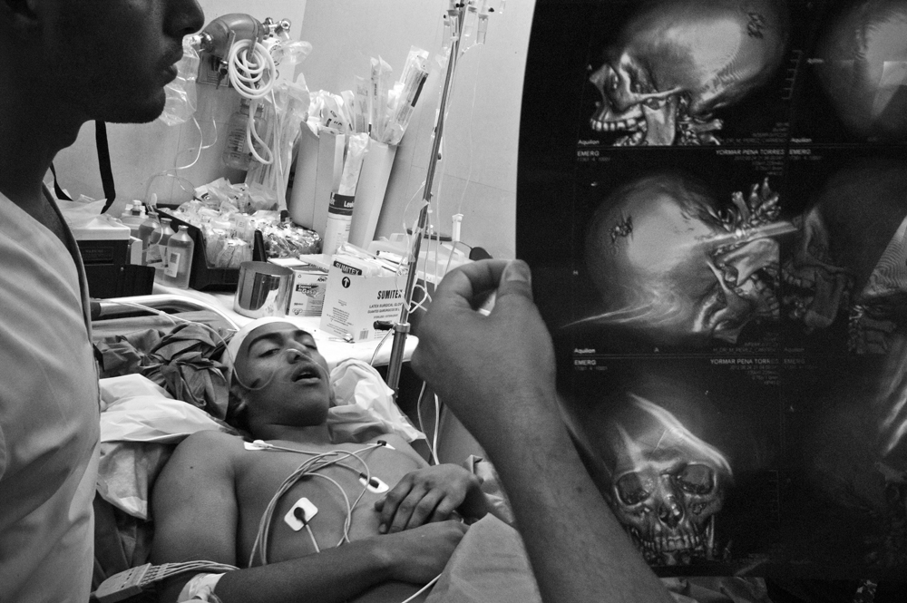 09.- The last night. : Doctors examine a radiography to see the level of damage in patient Joel Pena, 18 years old, caused by a shot in the head while a fight took place in a party, Joel died a few hours later. Around 50 persons are killed every weekend in Caracas, 90% of those victims by fire arms.